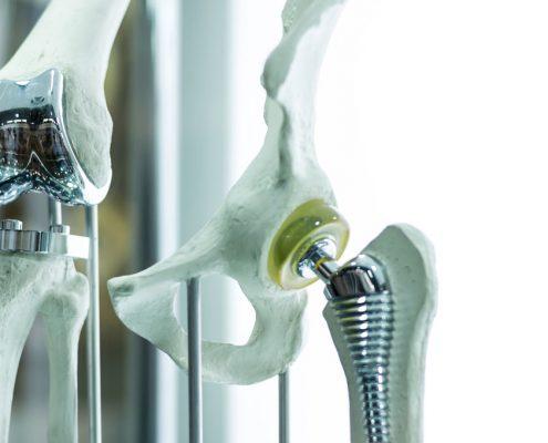 Angepasste Knieprothese